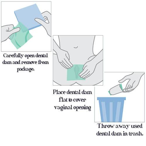 Trust Dental Dam Vanilla